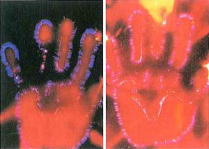 キルリアン写真 左:意識を集中する前  右:意識を集中した後